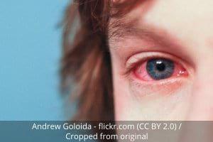 allergies red eyes